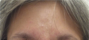 55-64 year old woman treated with Botox after 2697678