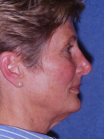 45-54 year old woman treated with Neck Lift 1547355