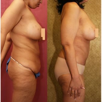 25-34 year old woman treated with Mommy Makeover before 3289161