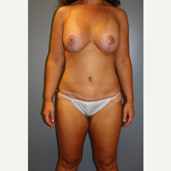 35-44 year old woman treated with Mommy Makeover after 3708803