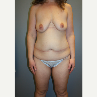 35-44 year old woman treated with Mommy Makeover before 3708803