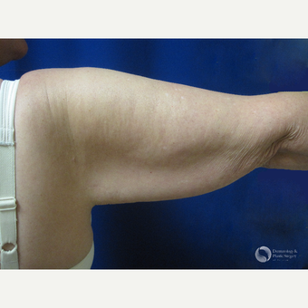 45-54 year old woman treated with Arm Lift before 3325310