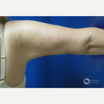 45-54 year old woman treated with Arm Lift after 3325310