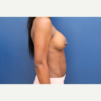 34 year old female, 400cc silicone gel high profile breast implants placed under the muscle after 3813681