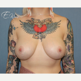 25-34 year old woman treated with Breast Lift after 3663433