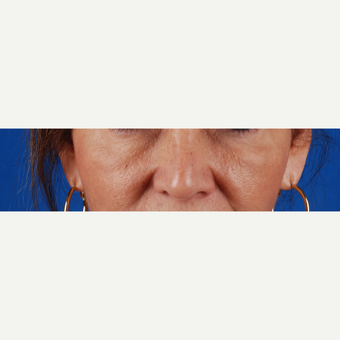 45-54 year old woman treated with Juvederm after 3027401