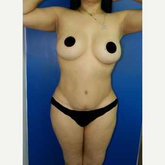 25-34 year old woman treated with Tummy Tuck before 3246035