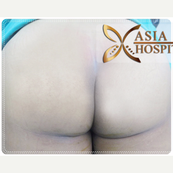 25-34 year old woman treated with Butt Implants before 3649109