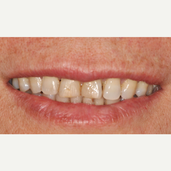 55-64 year old woman treated with Smile Makeover before 3577158