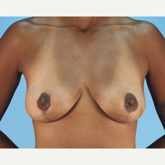 25-34 year old woman treated with Breast Lift after 3837748