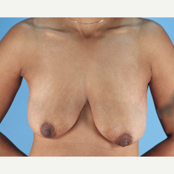 25-34 year old woman treated with Breast Lift before 3837748