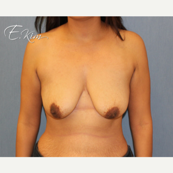 25-34 year old woman treated with Breast Augmentation before 3663351