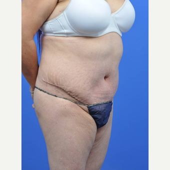 35-44 year old woman treated with Tummy Tuck after 3455275