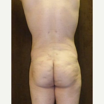 33 year old man treated with Liposuction after 1813595
