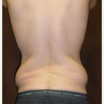33 year old man treated with Liposuction before 1813595