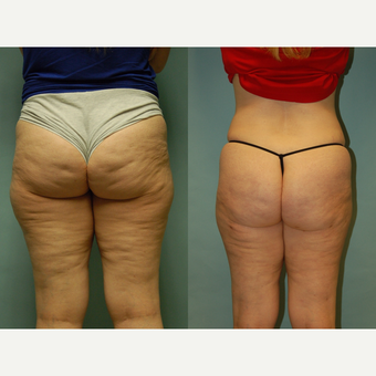 49 year-ld woman seven months post treatment with Cellulaze and Smartlipo, buttocks, hips and thighs before 3261884