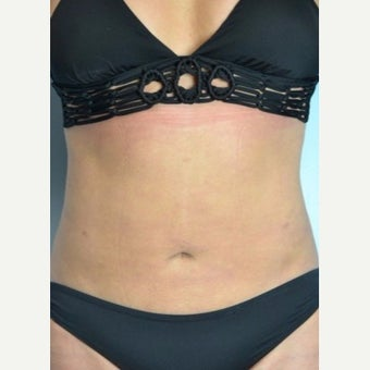 Liposuction Revision after 2132873