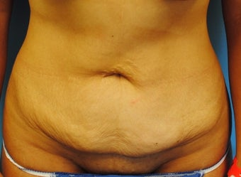 45-54 year old woman treated with Tummy Tuck before 2990109