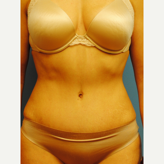 45-54 year old woman treated with Tummy Tuck after 2990109