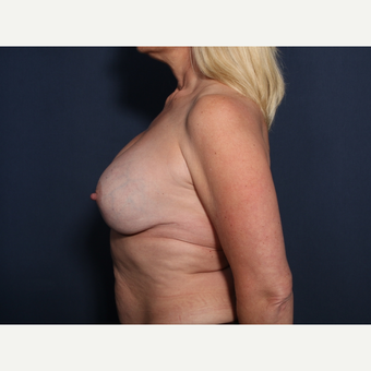 45-54 year old woman treated with Breast Implant Revision (view 2 of 2) before 3287688