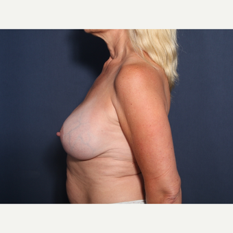 45-54 year old woman treated with Breast Implant Revision (view 2 of 2) after 3287688