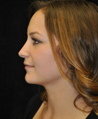 Nose Surgery - Rhinoplasty after 1253186