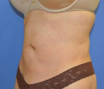 25-34 year old woman treated with Liposuction after 2380153
