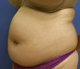 25-34 year old woman treated with Liposuction before 2380153