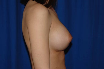 22 year-old woman desiring breast augmentation 657477