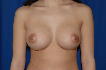 22 year-old woman desiring breast augmentation