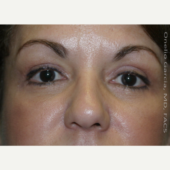 45-54 year old woman treated with Eyelid Surgery after 3008517