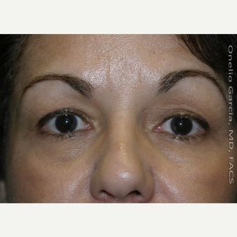 45-54 year old woman treated with Eyelid Surgery before 3008517