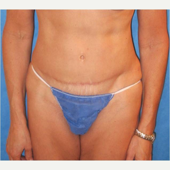 57 year old woman treated with Tummy Tuck after 3726030