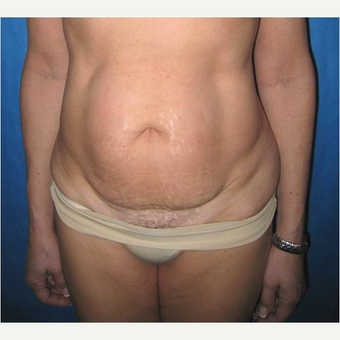 57 year old woman treated with Tummy Tuck before 3726030