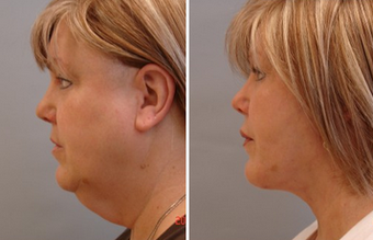 Mid Face Cheek Lift  before 1360162