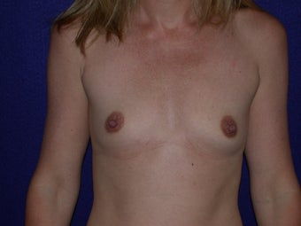 Breast Augmentation before 204618