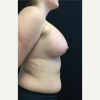 25-34 year old woman treated with Breast Augmentation after 3583252