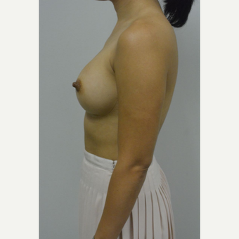 35-44 year old woman treated with Breast Implants after 3005066
