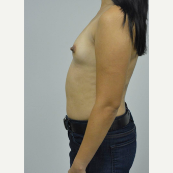 35-44 year old woman treated with Breast Implants before 3005066