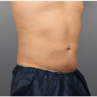 35-44 year old man treated with CoolSculpting after 3507513