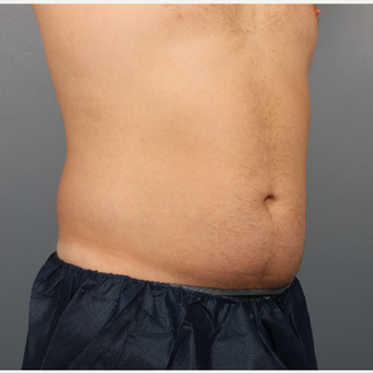 35-44 year old man treated with CoolSculpting before 3507513