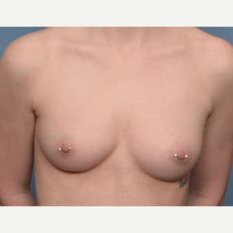 18-24 year old woman treated with Breast Implants before 3234433