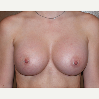 18-24 year old woman treated with Breast Implants after 3234433