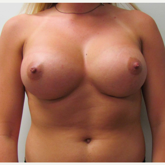 Breast Augmentation for this 6 Feet Tall 24 Year Old Woman after 3043202