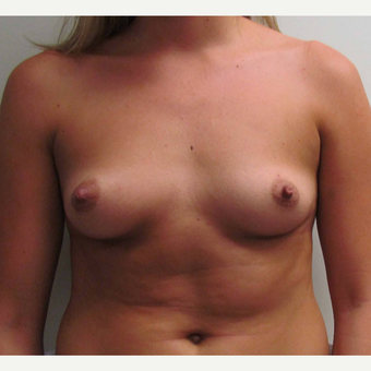 Breast Augmentation for this 6 Feet Tall 24 Year Old Woman before 3043202