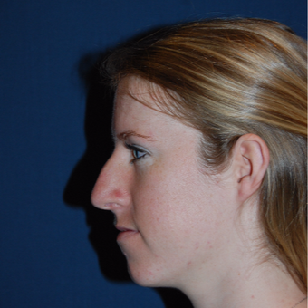 18-24 year old woman treated with Rhinoplasty before 2976847