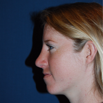 18-24 year old woman treated with Rhinoplasty after 2976847