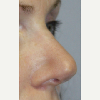 35-44 year old woman treated with Revision Rhinoplasty before 2984629
