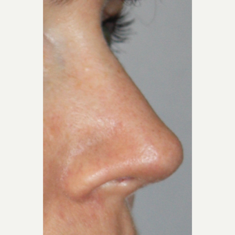 35-44 year old woman treated with Revision Rhinoplasty after 2984629