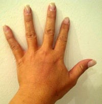 Hand Rejuvenation after 1135345